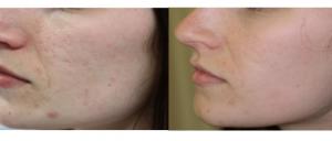 cicatrices acné avant apres