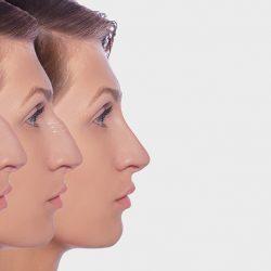 bosse nasale avant apres